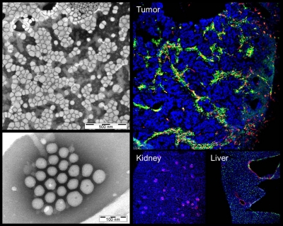Nanoparticles homing to breast tumor