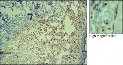 High infiltration of CD206+ cells in human breast tumors